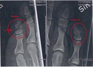 Lilltån är bruten såpass att det ser ut som om jag har en extraled. Det kan man faktiskt ha utan att lida eller vara vanskapt, därav den jämförande röntgenbilden på andra foten. (Eftersom det handlar om röntgen, är världen bakvänd. Höger motsvarar alltså vänster.)