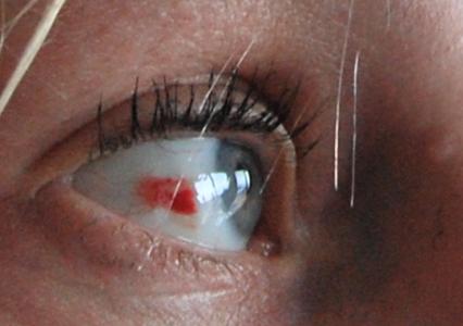 Blödning i ögat, blåmärke inne vid näsroten.