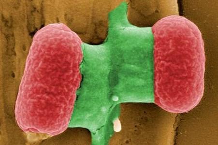 Ehec-bakterien, fotograferad med elektronmikroskop. (Bilden är från Helmholtz Centre for Infection Research och jag har inte kunnat fråga Reuters om jag fick ta den, så nu är jag kriminell igen.)