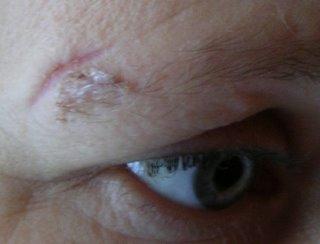 Ärret med klister kvar i det spretiga ögonbrynshåret.