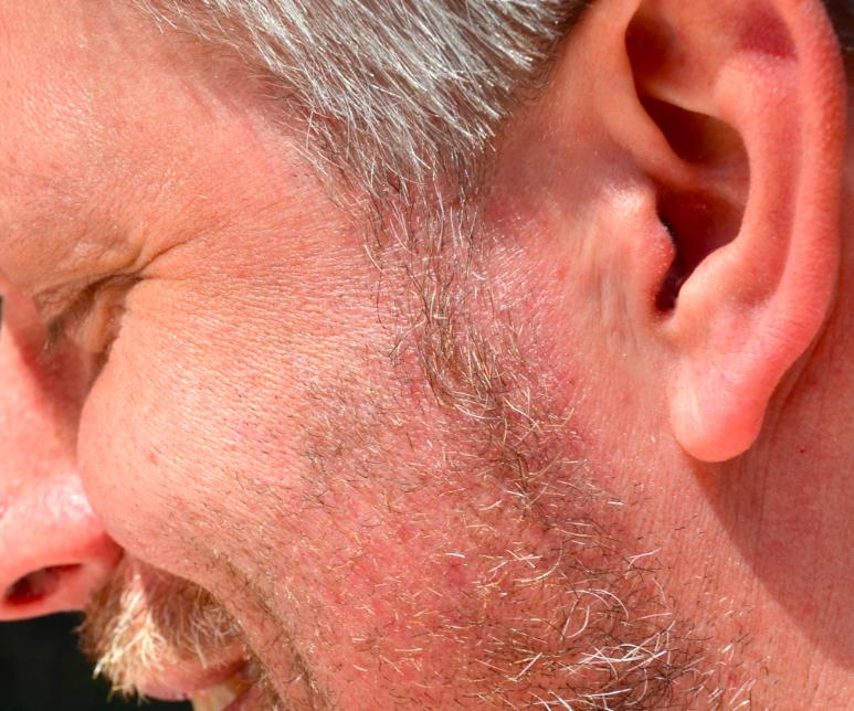Avslutningsvis en osedvanligt hårlös näsborre – om än med en svag rökdoft.